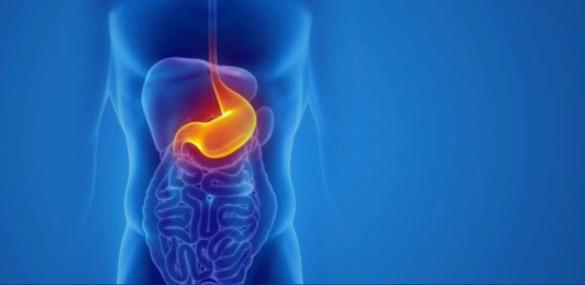 Πράσινο φως στην επέμβαση παχυσαρκίας για τους διαβητικούς, μειώνει τον κίνδυνο καρδιακών παθήσεων.