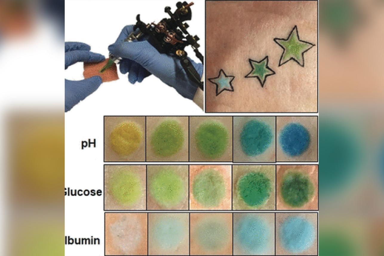 τατουάζ αλλάζει χρώμα ανάλογα με τα επίπεδα γλυκόζης στο αίμα