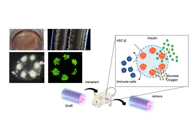 μεταμόσχευση βλαστοκυττάρων