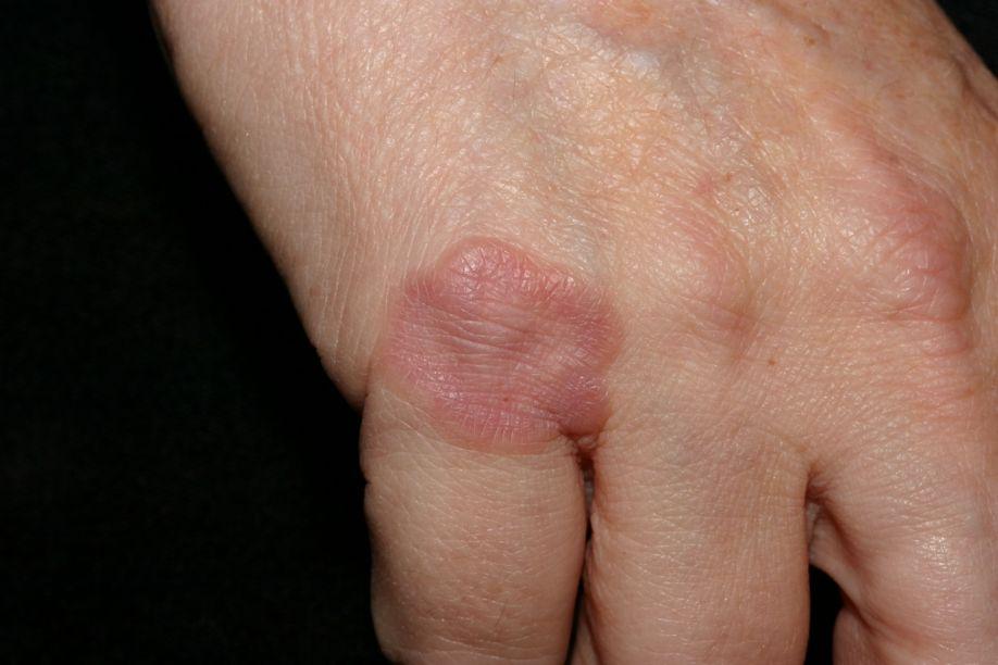 δακτυλιοειδές κοκκίωμα